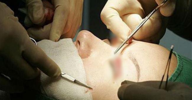 Sau kỳ thi đại học, không chỉ nữ sinh mà cả nam sinh cũng đổ xô đi phẫu thuật thẩm mỹ - Ảnh 2.