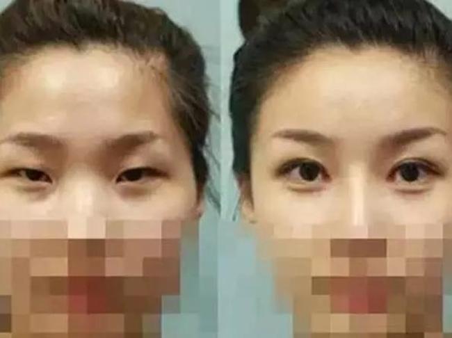Sau nửa năm đi cắt mí mắt, nữ sinh bỗng phát hiện bị nhiễm HIV - Ảnh 2.