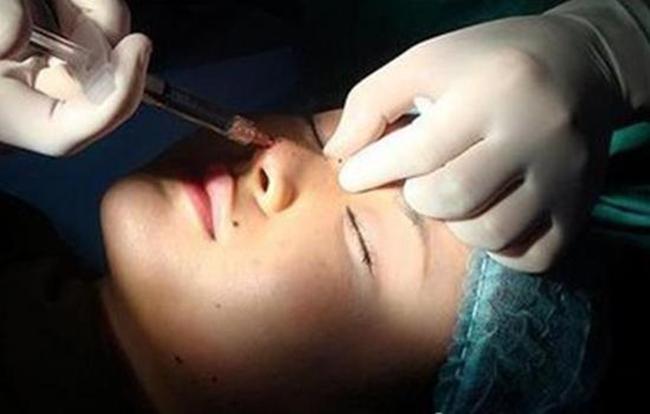 Sau nửa năm đi cắt mí mắt, nữ sinh bỗng phát hiện bị nhiễm HIV - Ảnh 3.