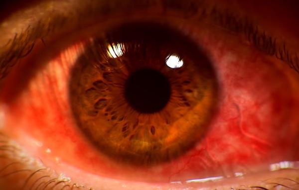 Giun bò ngọ nguậy trong mắt và nguyên nhân khiến bạn ngã ngửa - Ảnh 1.