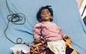 Bé gái 14 tháng tuổi nặng 3,5kg vì cha nghèo chỉ biết nuôi con bằng nước cơm loãng