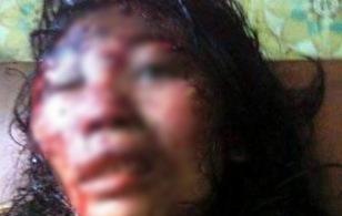 Bắc Giang: Chồng đánh đập vợ dã man như thời trung cổ