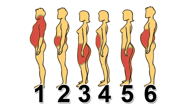 Xem vị trí mỡ thừa trên cơ thể bạn, biết ngay giải pháp giảm cân hiệu quả - Ảnh 1.