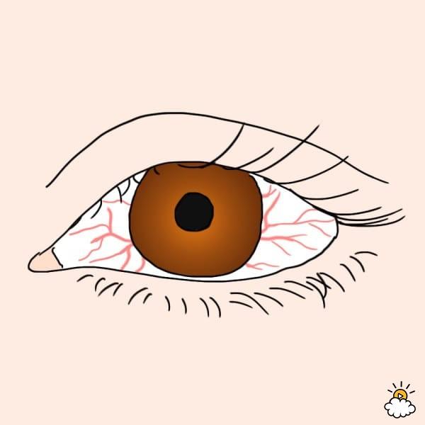 Sự thay đổi bất thường ở mắt báo hiệu bệnh nguy hiểm - Ảnh 2.